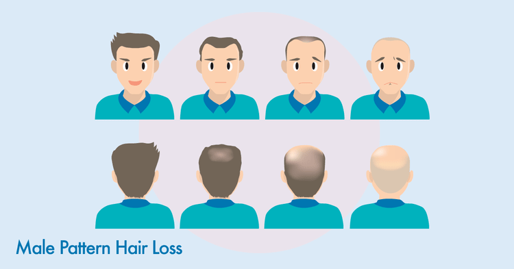 Male pattern hair loss illustration