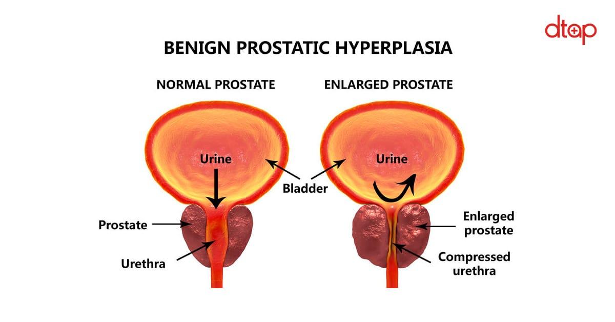 Benign-Prostatic-Hyperplasia-(BPH)