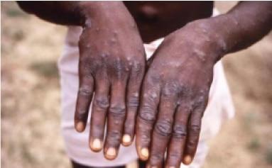 monkeypox rash