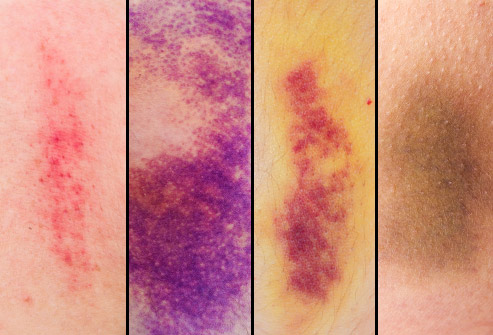 bruise color progression for penis discolouration