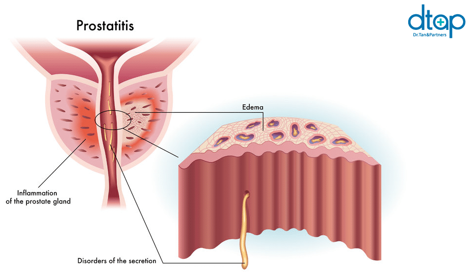 prostatitis discussion forum Phytikomplex a prostatitisben