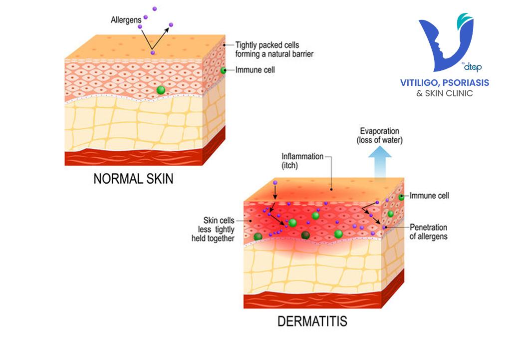 contact dermatitis skin